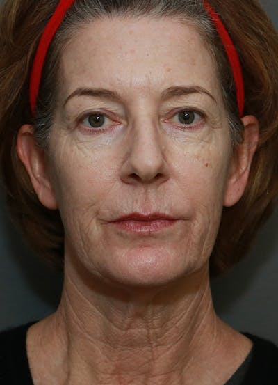 Facelift Gallery - Patient 31730255 - Image 1