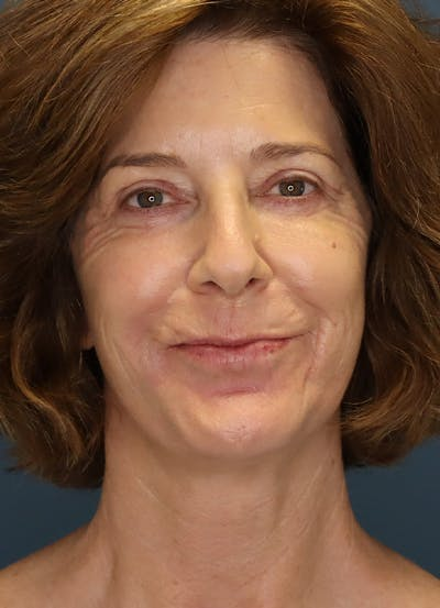 Facelift Gallery - Patient 31730255 - Image 2