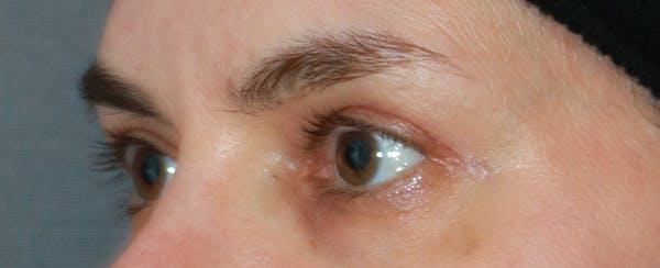 Upper Blepharoplasty Gallery - Patient 32588701 - Image 4
