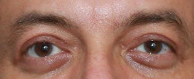Upper Blepharoplasty Gallery - Patient 32588702 - Image 2