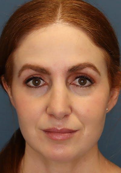 Aesthetic Rhinoplasty Gallery - Patient 35802290 - Image 2