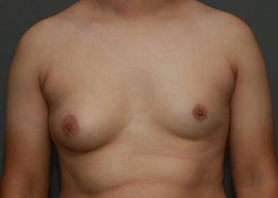 Gynecomastia Gallery - Patient 35803980 - Image 1