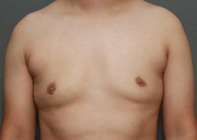 Gynecomastia Gallery - Patient 35803980 - Image 2