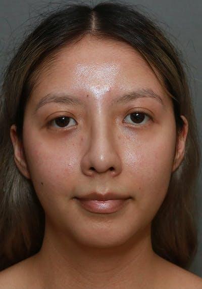 Aesthetic Rhinoplasty Gallery - Patient 37536322 - Image 2