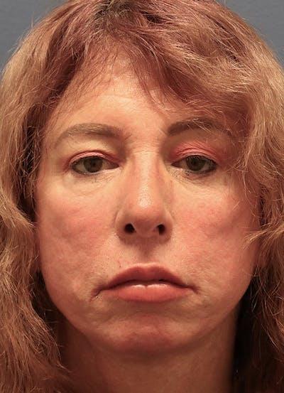 Aesthetic Rhinoplasty Gallery - Patient 37536344 - Image 2