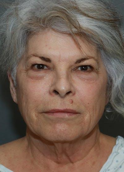 Facelift Gallery - Patient 44812279 - Image 1