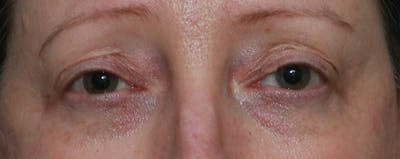 Lower Blepharoplasty Gallery - Patient 44812288 - Image 1