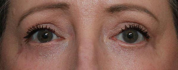 Lower Blepharoplasty Gallery - Patient 44812288 - Image 2