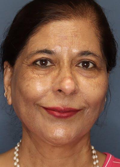 Facelift Gallery - Patient 48085513 - Image 2