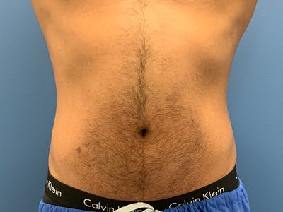 Cool Sculpting Gallery - Patient 51416736 - Image 1