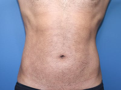 Cool Sculpting Gallery - Patient 51416736 - Image 2