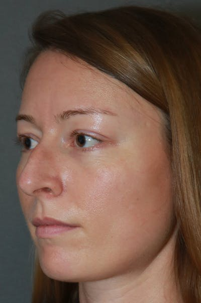 Aesthetic Rhinoplasty Gallery - Patient 53229901 - Image 1