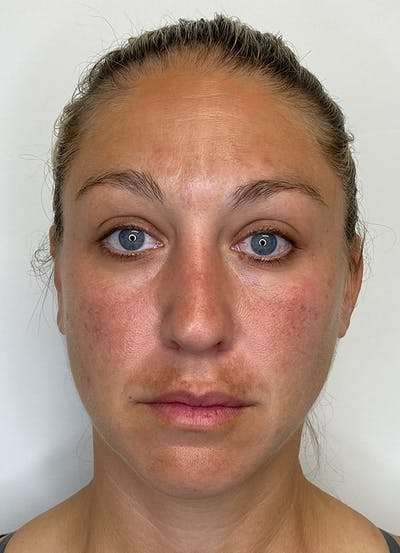 Chemical Peels Gallery - Patient 55281375 - Image 1