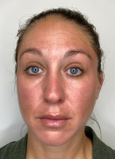 Chemical Peels Gallery - Patient 55281375 - Image 2