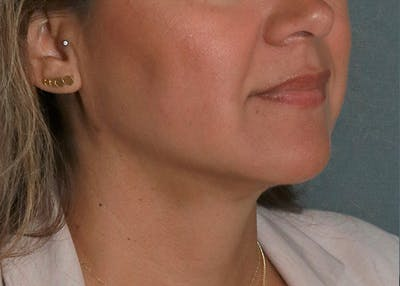 Submental Liposuction Gallery - Patient 57584058 - Image 2