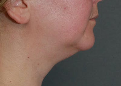 Submental Liposuction Gallery - Patient 57584059 - Image 1