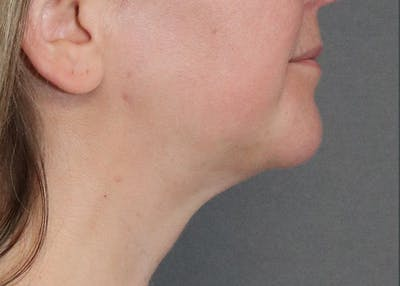 Submental Liposuction Gallery - Patient 57584059 - Image 2