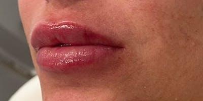 Lip Filler Gallery - Patient 61325633 - Image 2