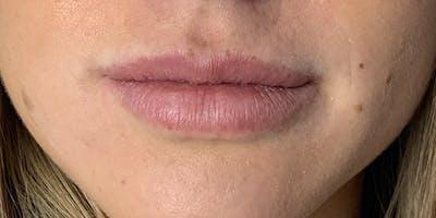 Lip Filler Gallery - Patient 61325627 - Image 1