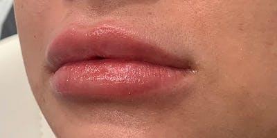 Lip Filler Gallery - Patient 61325634 - Image 2
