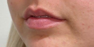 Lip Filler Gallery - Patient 61325628 - Image 1