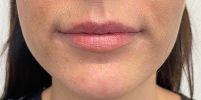 Lip Filler Gallery - Patient 61325622 - Image 1