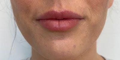 Lip Filler Gallery - Patient 61325622 - Image 2