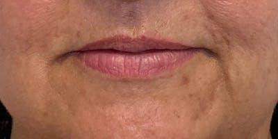 Lip Filler Gallery - Patient 61325631 - Image 1