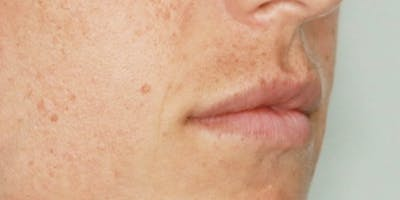 Lip Filler Gallery - Patient 61325630 - Image 1