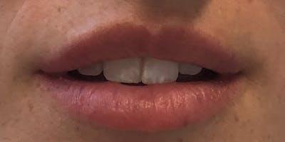 Lip Filler Gallery - Patient 61325636 - Image 1