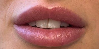 Lip Filler Gallery - Patient 61325636 - Image 2