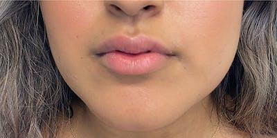 Lip Filler Gallery - Patient 61325621 - Image 1