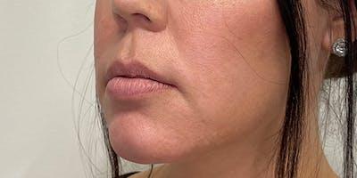 Lip Filler Gallery - Patient 61325623 - Image 1