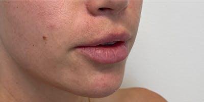 Lip Filler Gallery - Patient 61325624 - Image 1