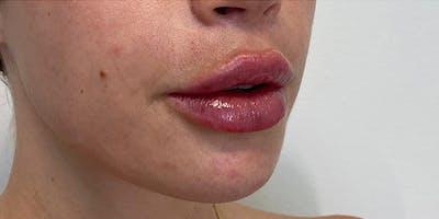 Lip Filler Gallery - Patient 61325624 - Image 2