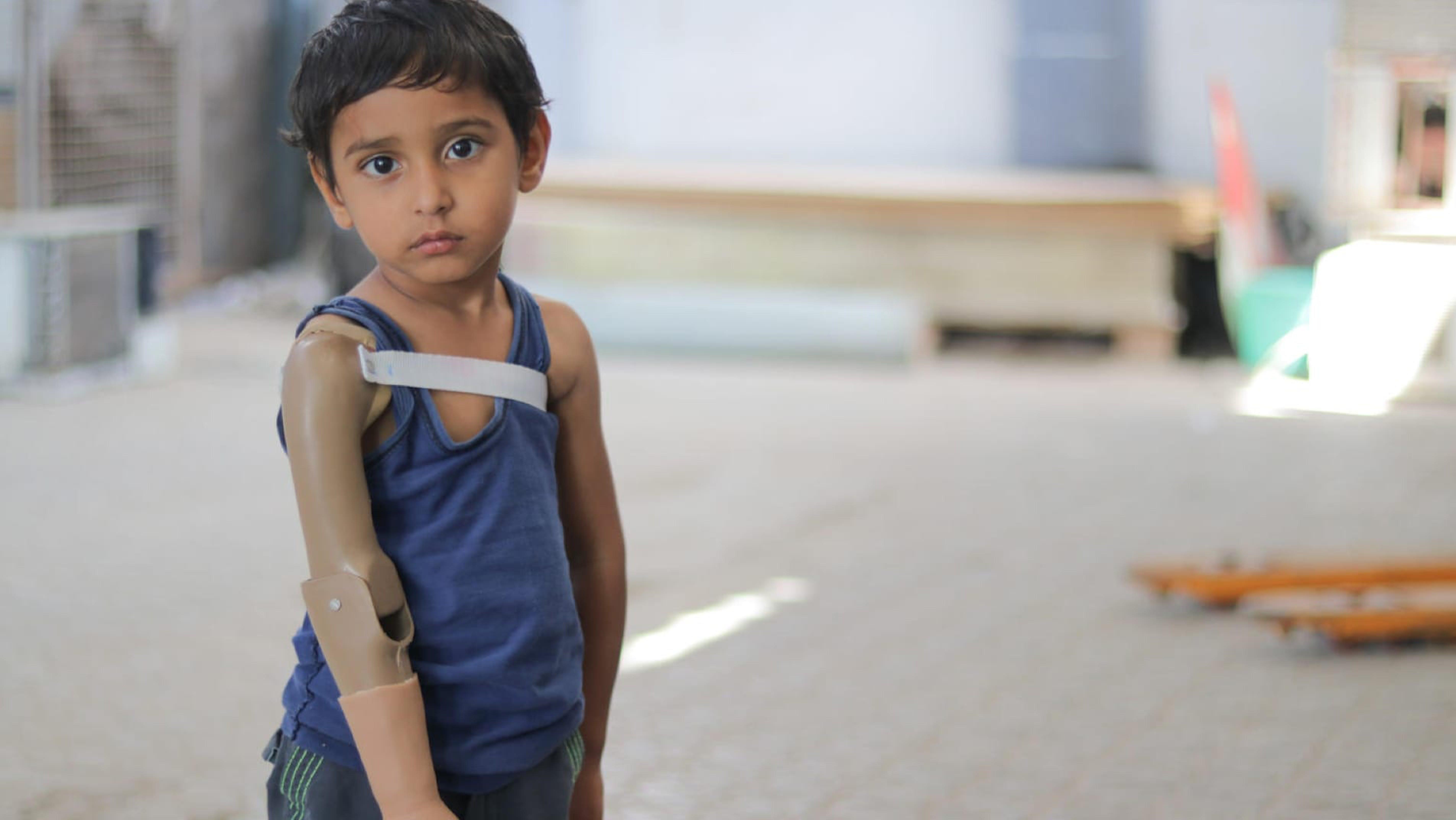 Rayan ha perso un braccio durante i combattimenti nello Yemen.