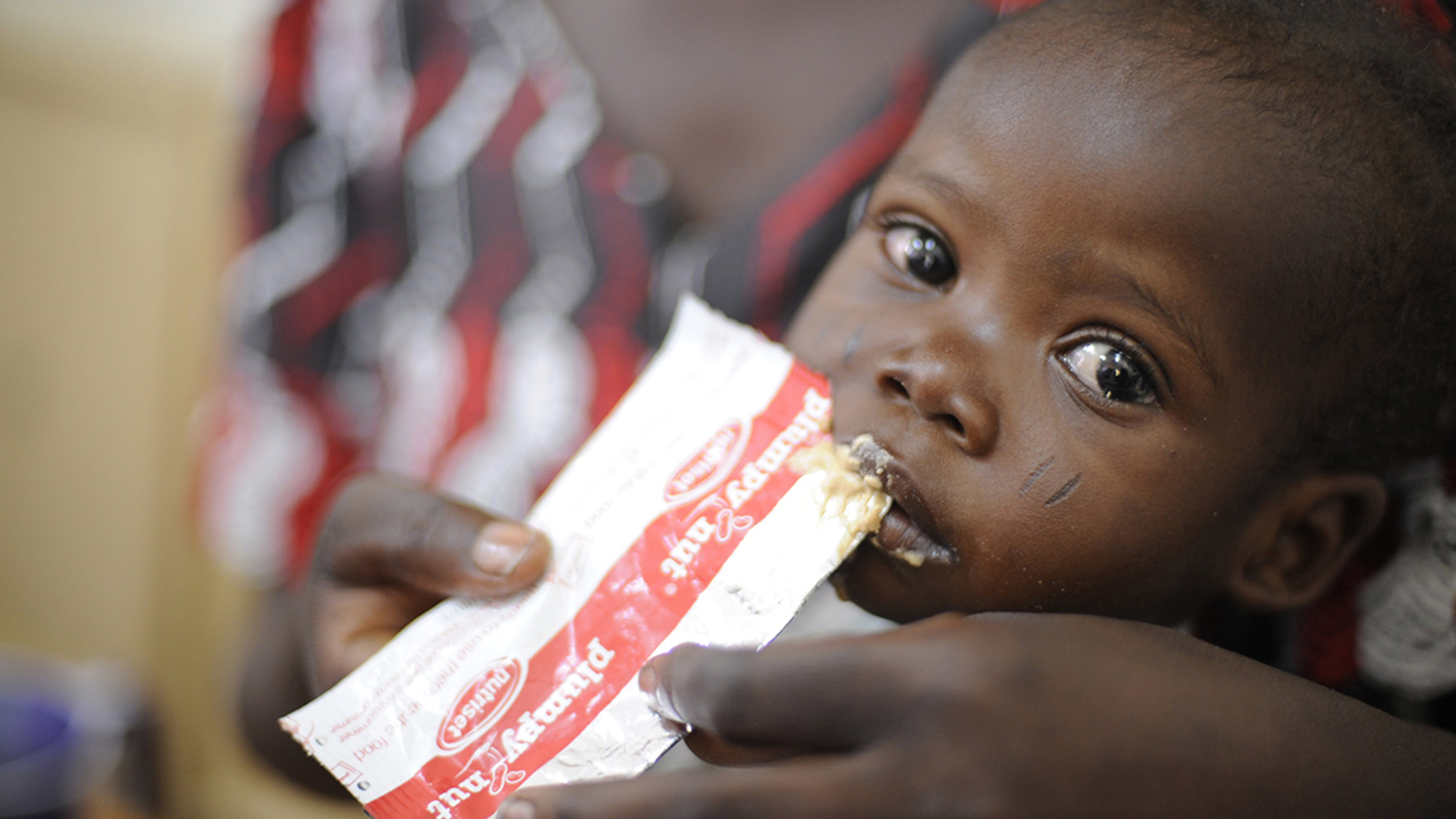 Ciad, bambino malnutrito con un alimento terapeutico pronto all'uso (RUTF)