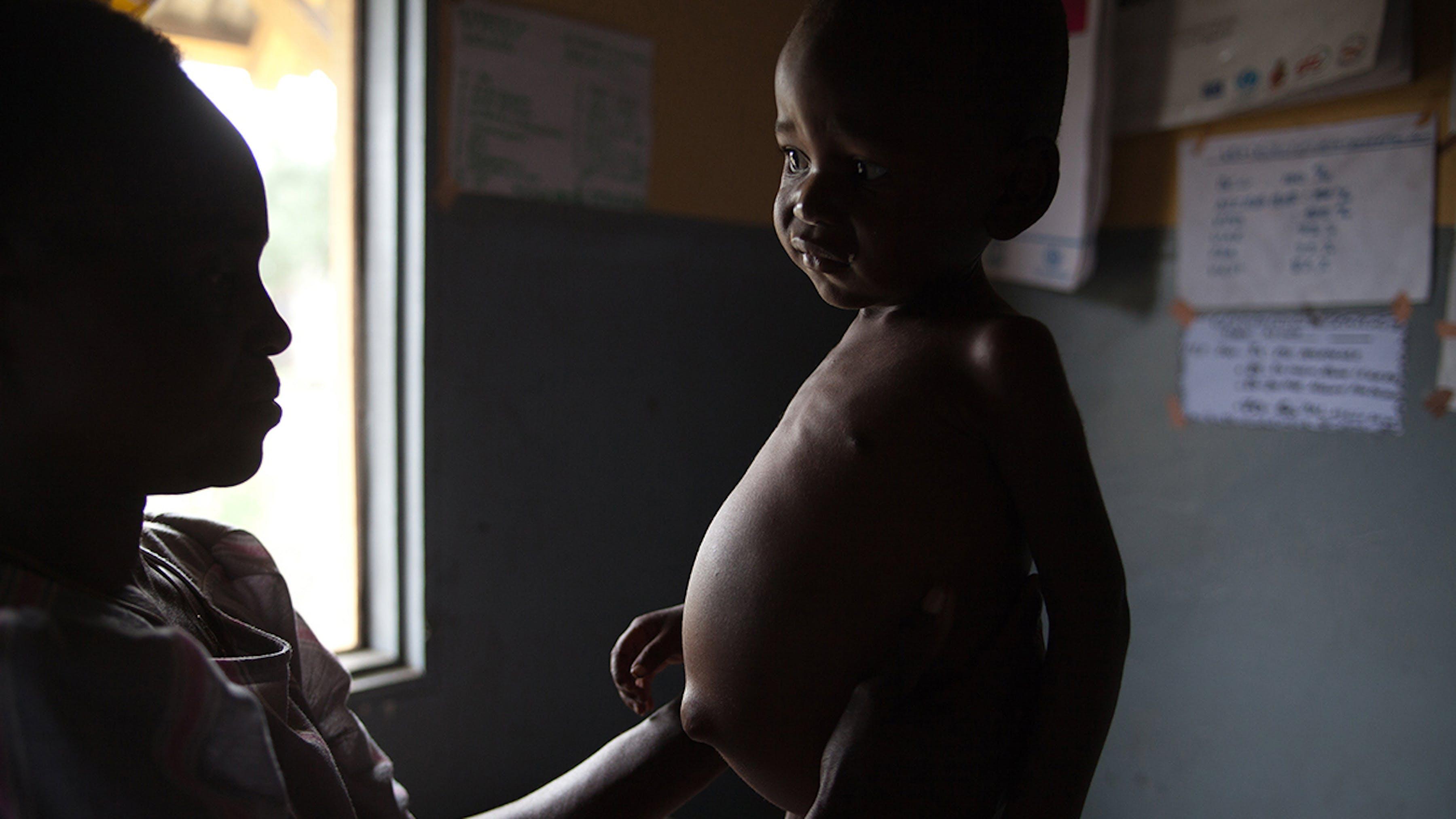 Congo, in un centro nutrizionale un bambino malnutrito viene visitato