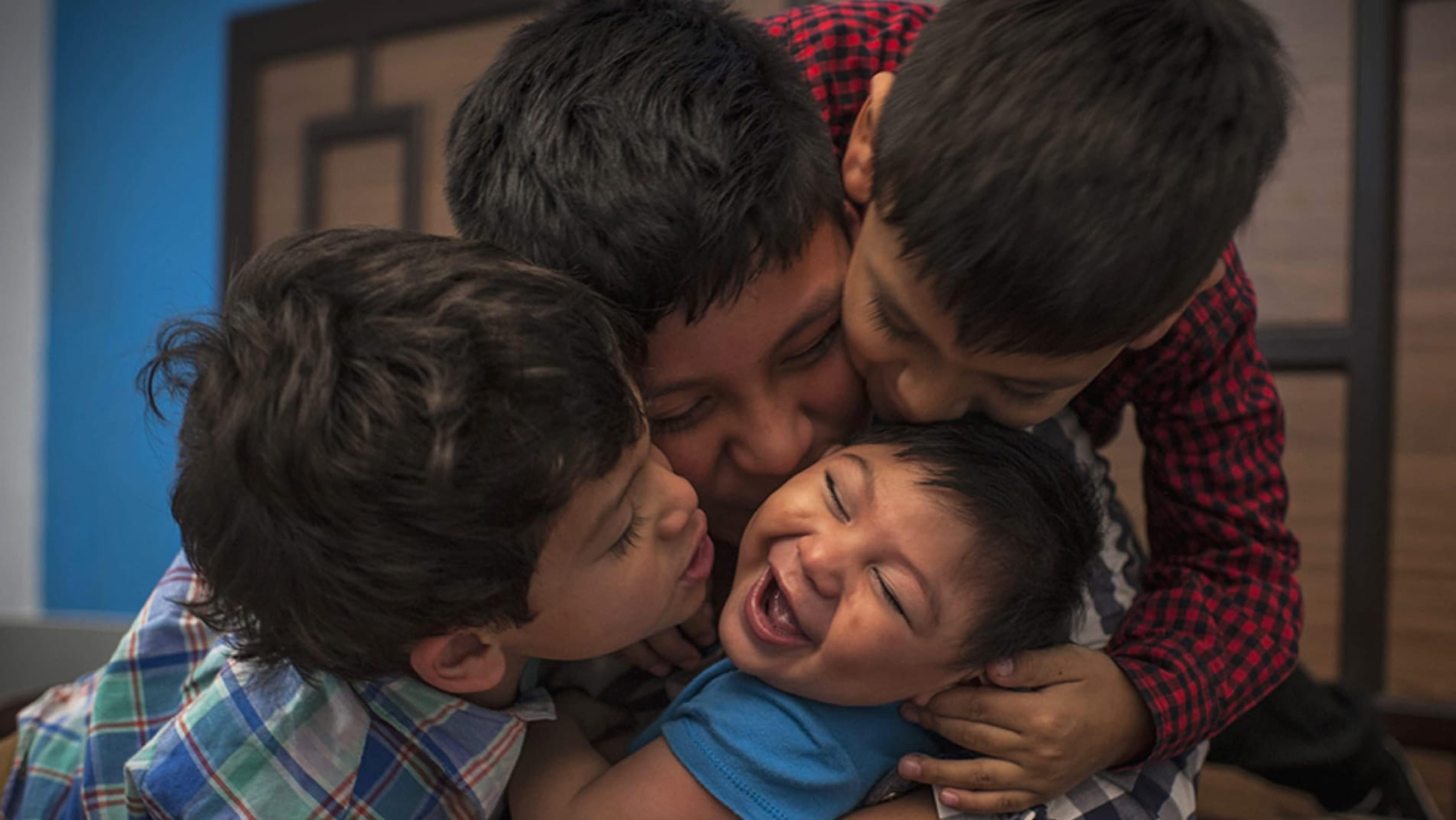 Danilo, 9 mesi, è nato con la sindrome da Zika congenita a Città del Guatemala.