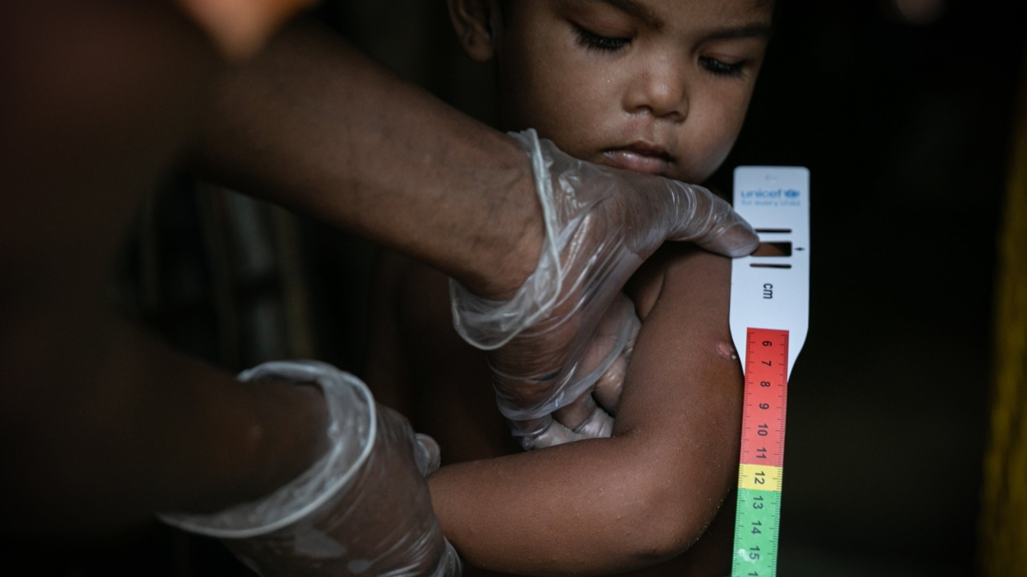 Bangladesh, screening nutrizionale su un bambino
