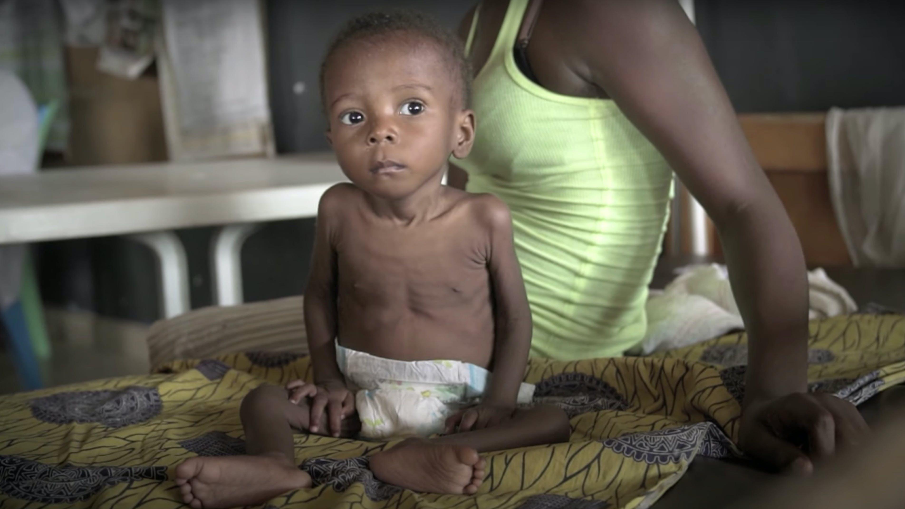 Favour, bambino malnutrito