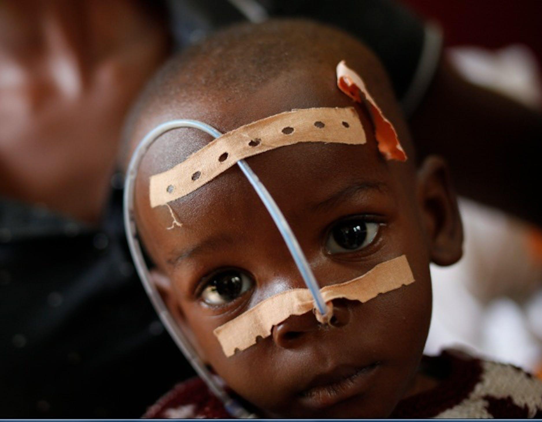Nelly, ricoverata al centro nutrizionale di Bangui in Repubblica Centrafricana.