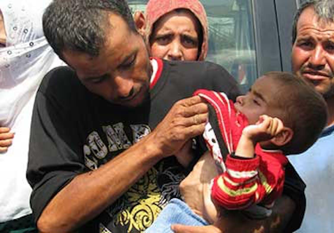 Il papà di Aisha mostra sua figlia sofferente, con le ossa sporgenti sul petto. Non è difficile capire che è affetta da malnutrizione. © UNICEF Lebanon 2013Azar