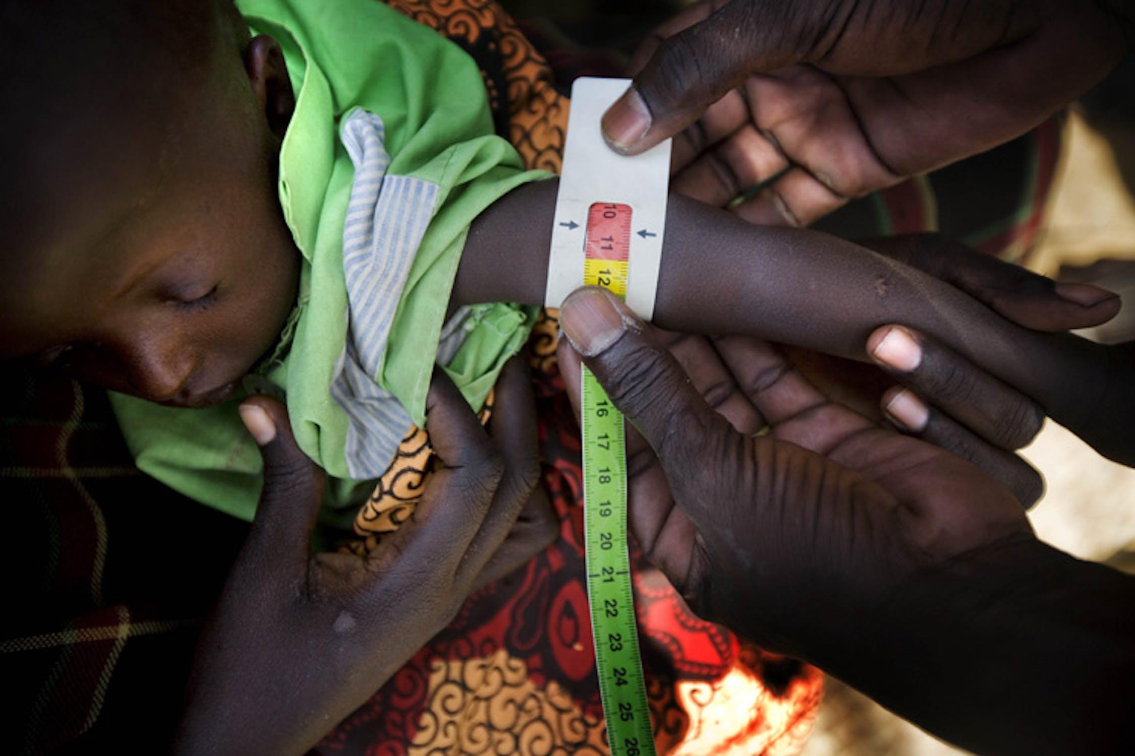 Un'infermiera misura la circonferenza del polso di un bambino nel villaggio di Longelop, nella regione somala del Turkana: la sezione rossa del braccialetto indica che il bambino è affetto da malnutrizione grave - ©UNICEF/NYHQ2011-1108/K.Holt