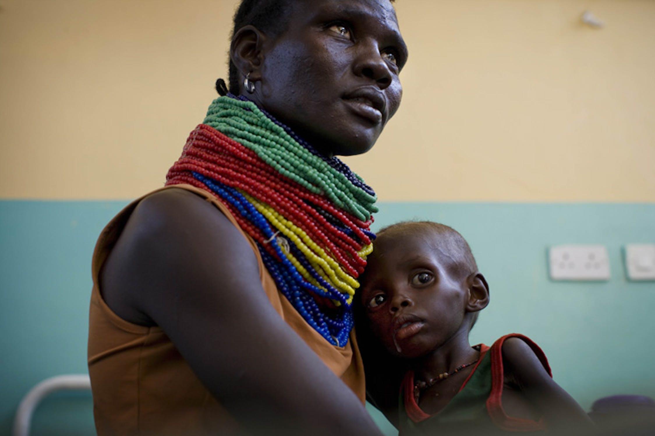 Il piccolo Arot, gravemente malnutrito, tra le braccia della mamma: è riuscito ad arrivare, dalla Somalia, nell'ospedale di Lodwar (Kenya) - ©UNICEF/NYHQ2011-1172/K.Holt