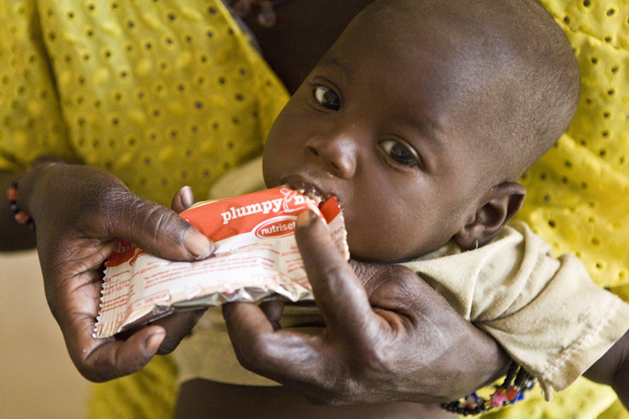 Un bambino affetto da malnutrizione grave con una dose di Plumpynut, un alimento terapeutico pronto per l'uso: foto scattata a Djenne, nella regione di Mopti (Mali) - ©UNICEF Mali/2012-0047/Harandane Dicko