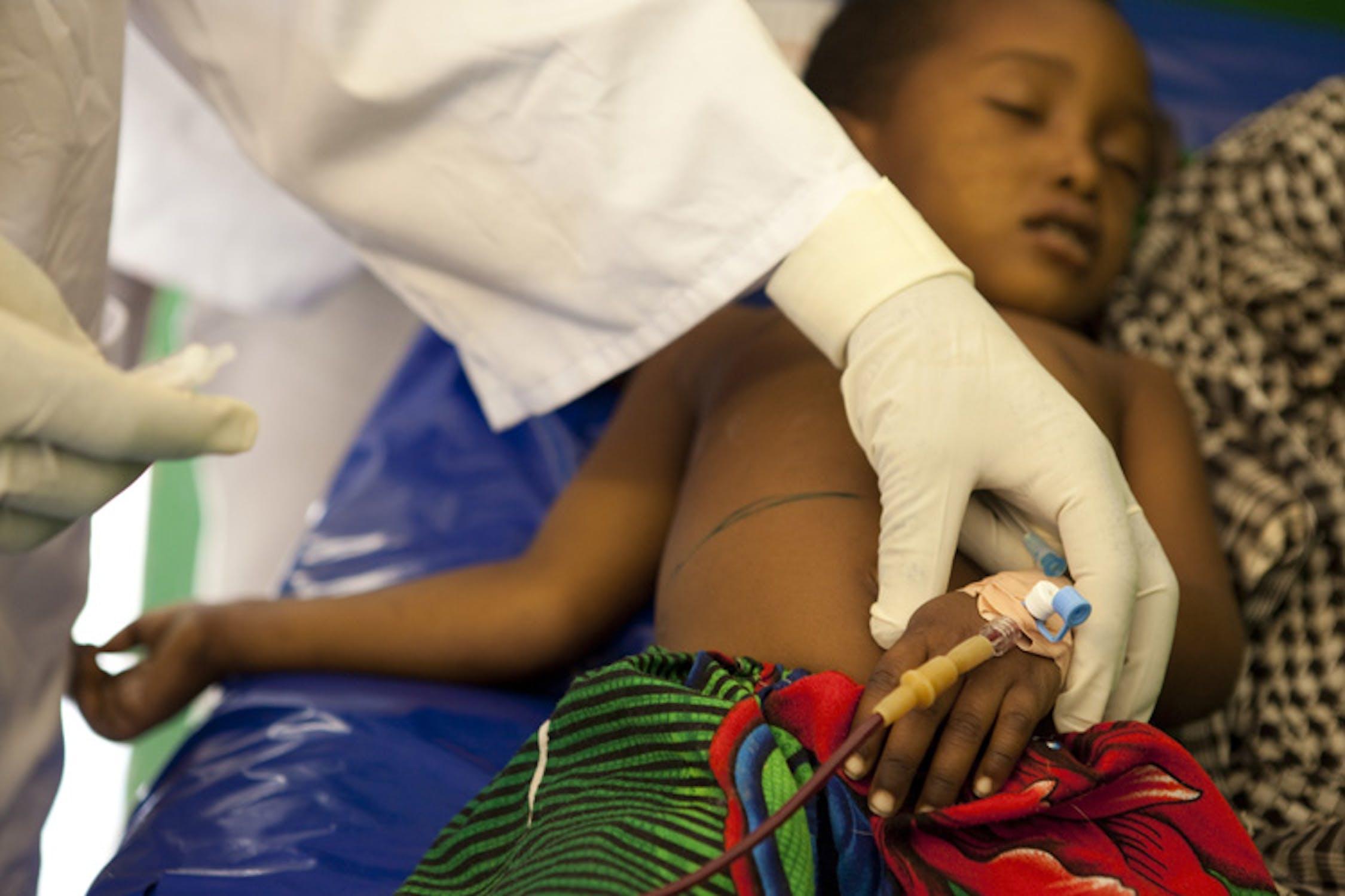 Cure a una bambina affetta da malnutrizione in un centro sanitario finanziato dall'UNICEF a Koukou Angarana, nel sud-est del Ciad - ©UNICEF/NYHQ2011-2165/Esteve