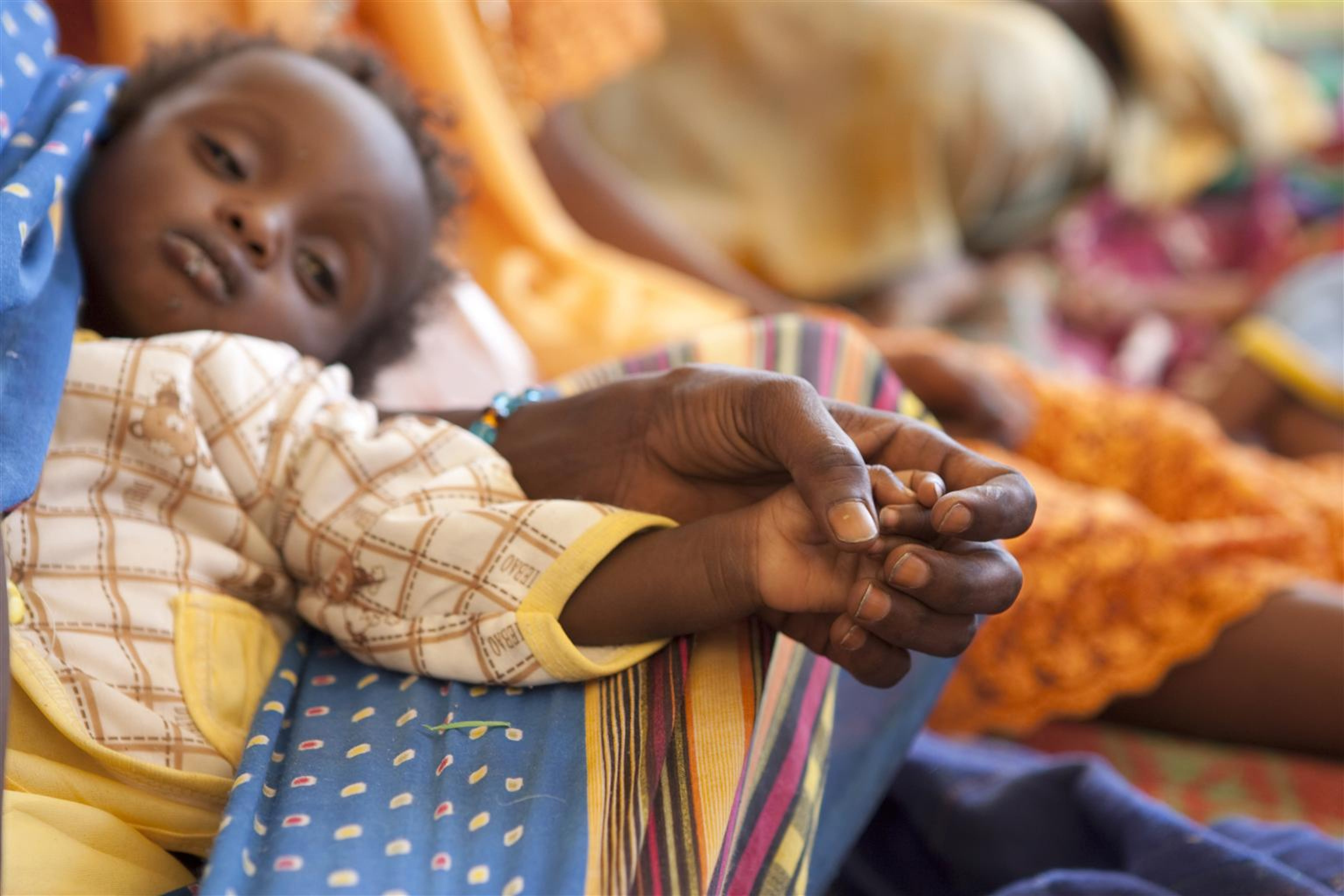 Un bambino in cura per un grave stato di denutrizione in un Centro nutrizionale terapeutico dell'UNICEF a Mao (Ciad) - ©UNICEF/NYHQ2011-2173/P.Esteve