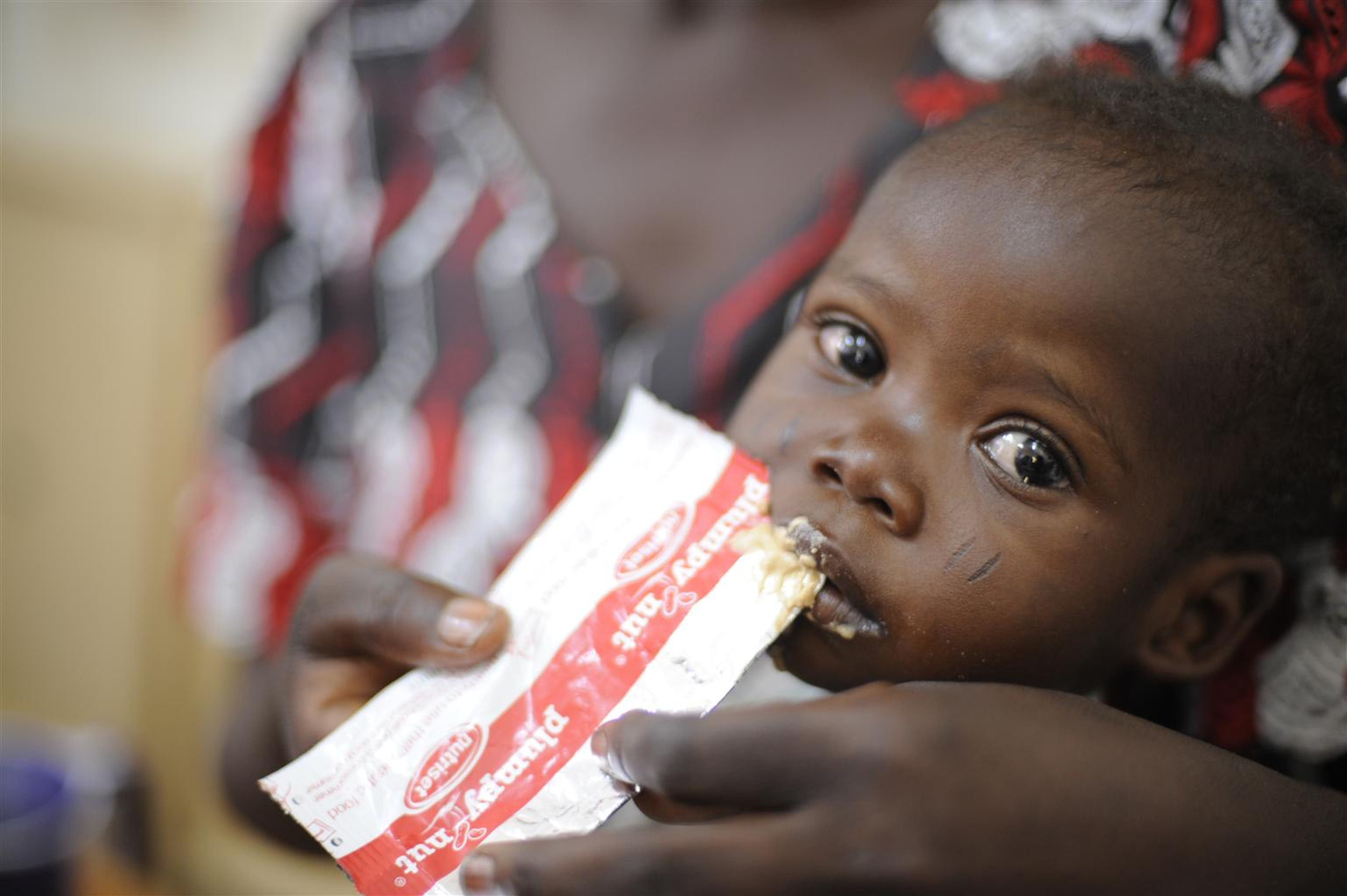 Un bambino ormai in fase di recupero da uno stadio di malnutrizione acuta nel centro nutrizionale terapeutico Chagoua a N'Djamena, capitale del Ciad - ©UNICEF/NYHQ2010-1159/R.Gangale