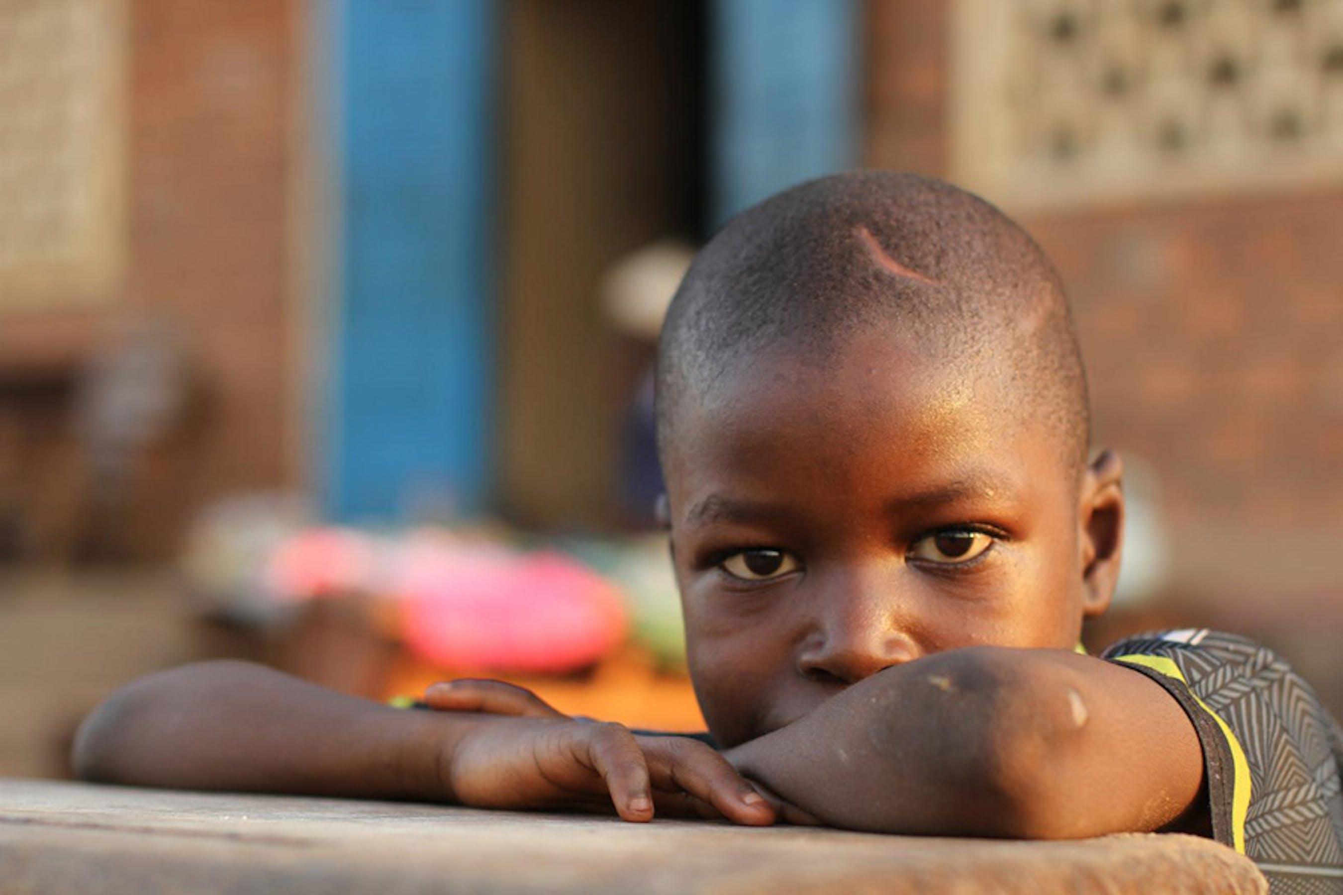 Adamou, 10 anni, vive con la mamma e un fratello in un campo profughi a Bossangoa, nella Repubblica Centrafricana. Sulla testa ha la cicatrice di un colpo di machete - ©UNICEF/NYHQ2013-1001/Gabrielle Menezes